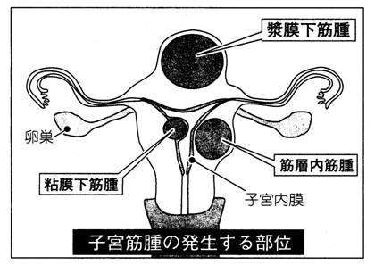 20110313子宮筋腫