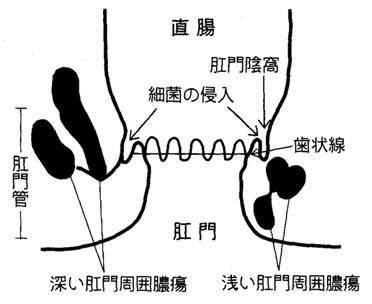 20111225肛門周囲膿瘍