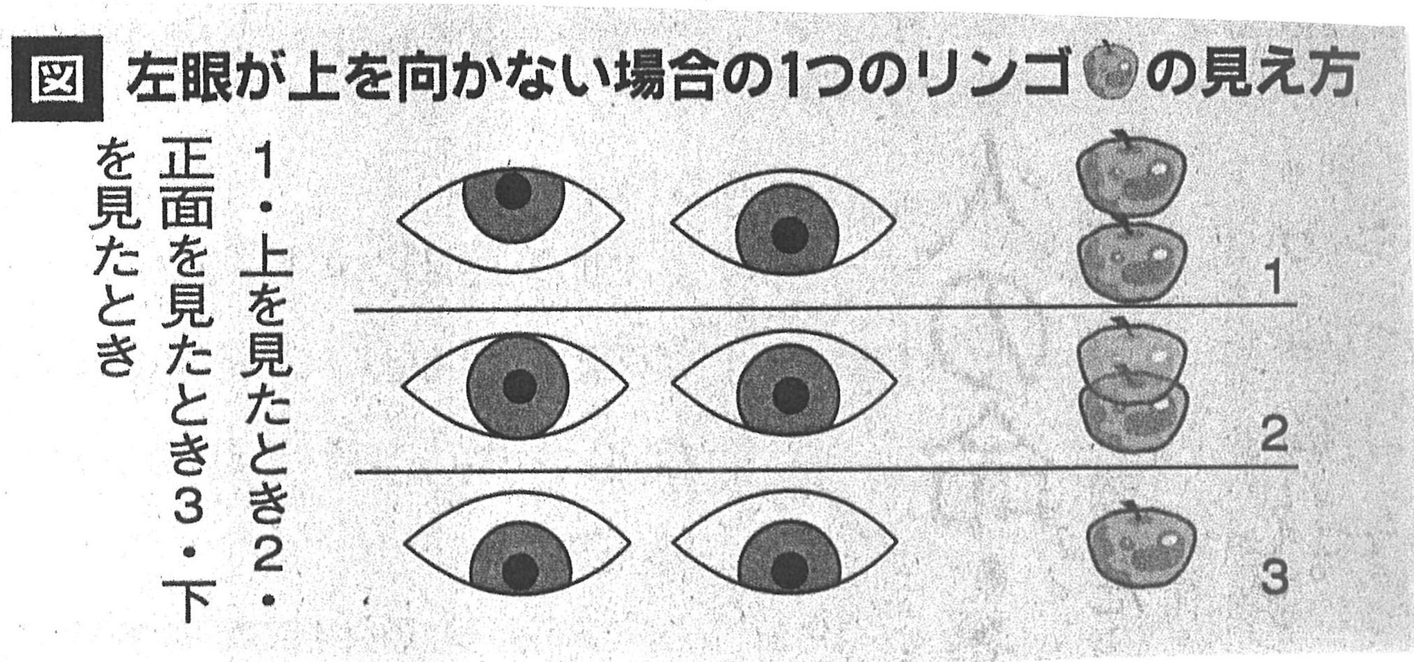 複視 - 徳島県医師会Webサイト